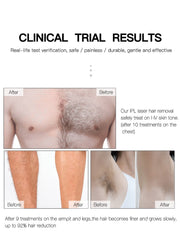Painless Laser Hair Removal - Dileblue