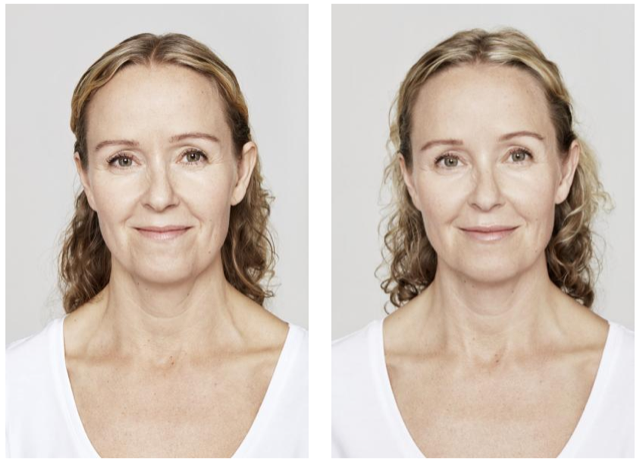 Front face of lady with before and after dermal filler treatment