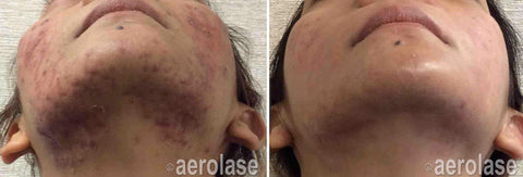 Before and after image of laser acne treatment of a lady