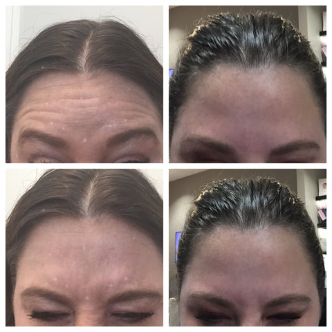 Dysport before and after of lady's forehead lines