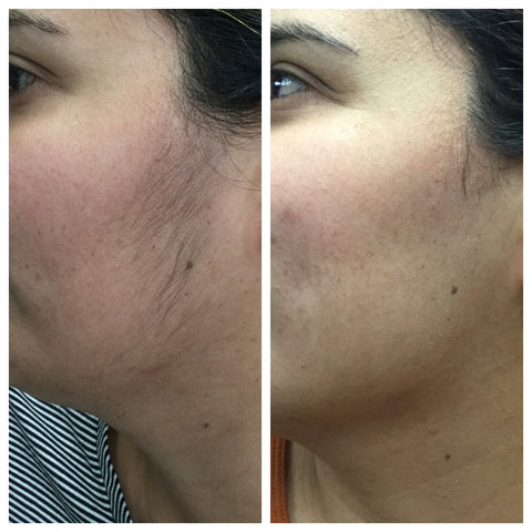 Before and after image of laser hair removal treatment on a women's face