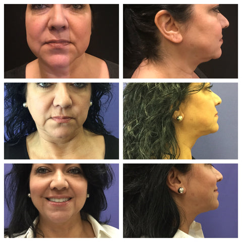 All dimension face of lady after kybella treatment