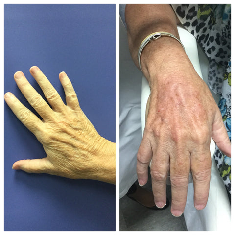 Before and after image of a women's hand