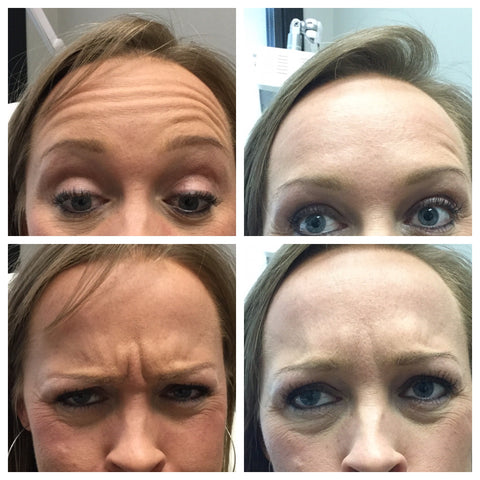 Dysport before and after of forehead lines