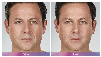 Before and after image of dermal filler for men