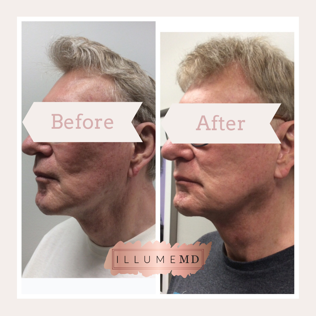 RF microneedling before and after