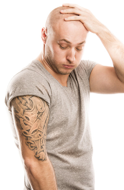 Laser tattoo removal in charlotte