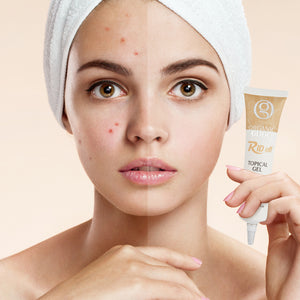 Topical Gel for Acne Containing Dead Sea Mineral Salt
