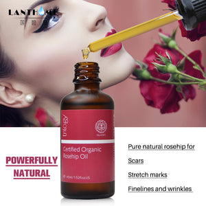 Organic Rose Hip Essential Oil Whitening Moisturizer Anti Aging Skin Care Massage Wrinkle Stretch Mark Pregnant Women Postpartum - Organic Youth & Beauty [100% Quality Guaranteed] Shop Now