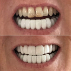 before-after-non-surgical-clip-in-veneers-With-A-Smile-Veneers
