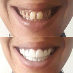 before-after-non-surgical-clip-on-veneers-With-A-Smile-Veneers