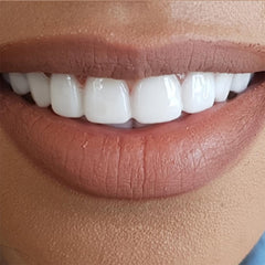 non-surgical-veneers-With-A-Smile