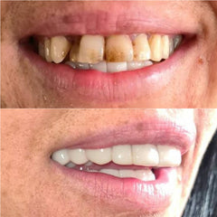 non-surgical-veneers-before-and-after-With-A-Smile