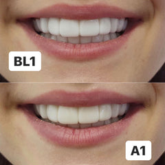 veneers-clip-on-temporary-natural-With-A-Smile
