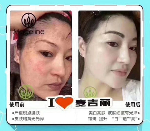 mageline skincare for pigmentation