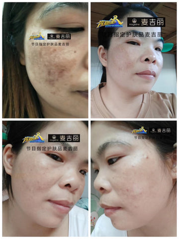 skincare for pigmentation