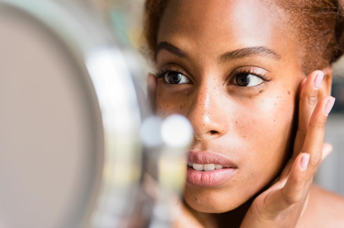 It's Acne Awareness Month: Why We Should Rethink How We Talk About Our Skin