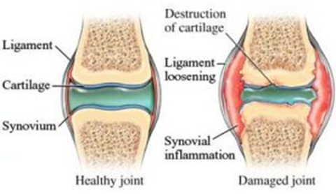 How does Degenerative Joint Disease Occur