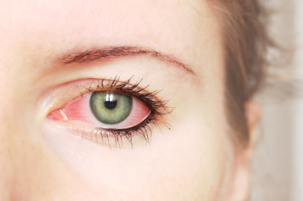 Irritated eye caused by clogged waterline