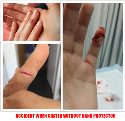 grater hand protector