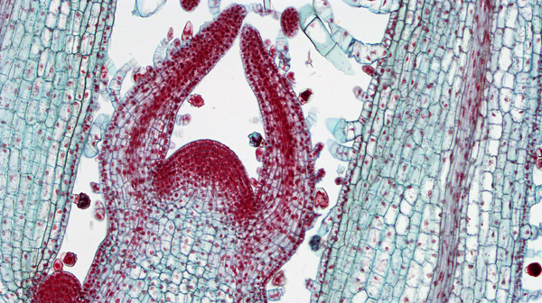 Shoot apical meristem showing very high cell density.