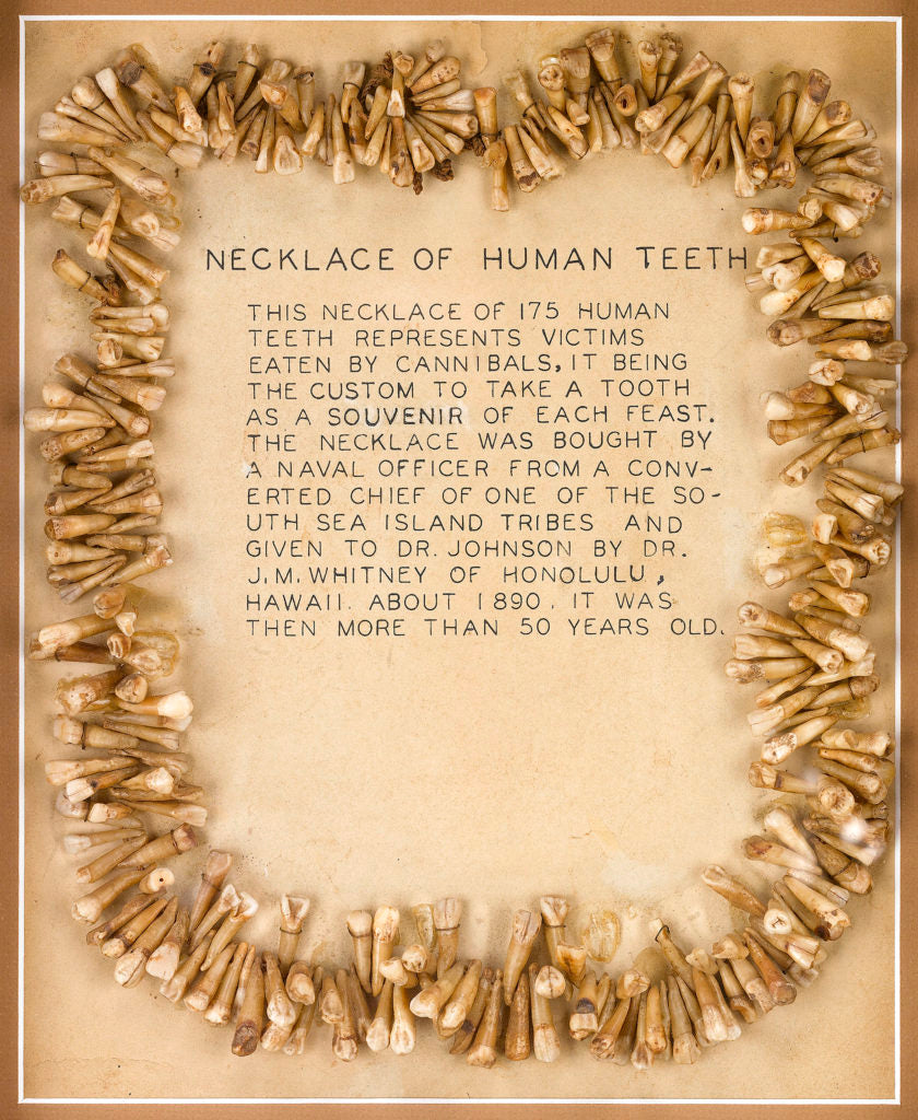 A Fijian Vuasagale Human Tooth Necklace comprised of 175 teeth. Circa 1840.