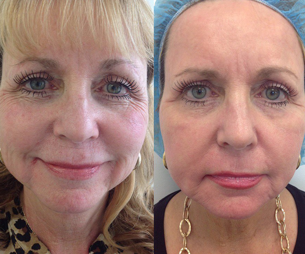 *Actual patient of Dr. Heidi before and after CO2 Laser Resurfacing & Botox Treatment.