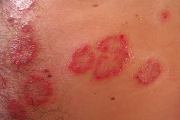 An image of psoriasis, of inflamed broken-out skin