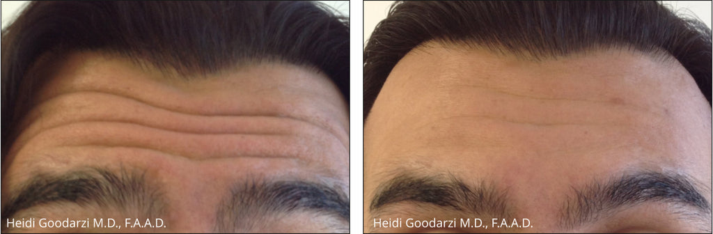 male patient before and after of botox treatment for forehead frown lines