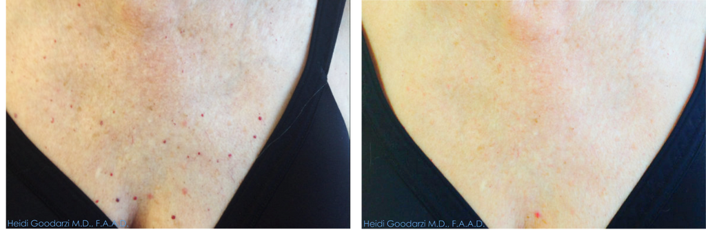 A photo of a patients chest showing the before and after of a single treatment of Intense Pulse Light (IPL) to get rid of her angiomas (red spots).