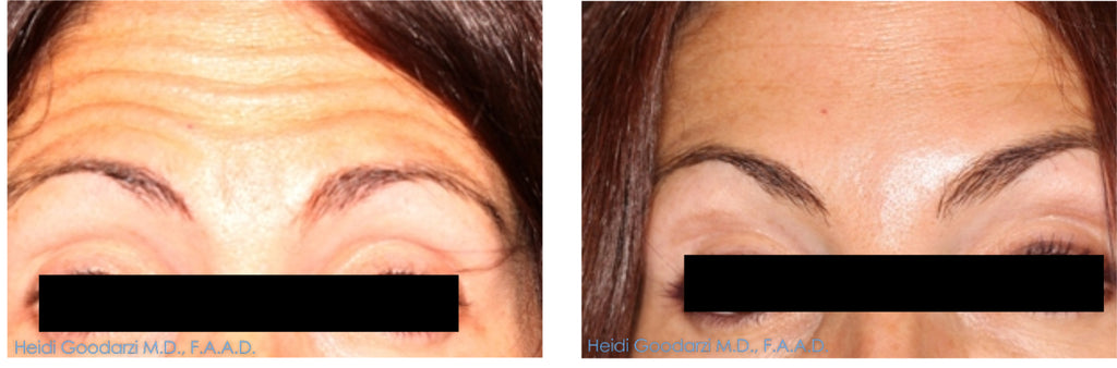 Patient before and after of forehead frown lines botox treatment by Doctor Heidi.