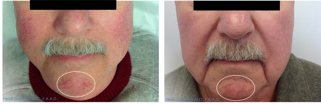 The before and after of a patient that had IPL for the treatment of red pots and vessels.