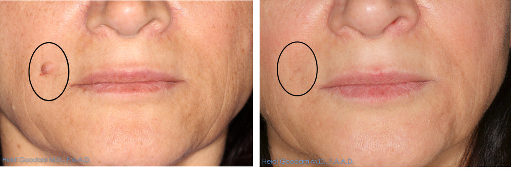 patient before and after of mole removal by doctor heidi goodariz