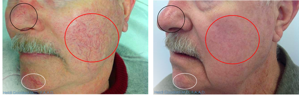 The before and after of a patient with his head turned right that had IPL for the treatment of red pots and vessels