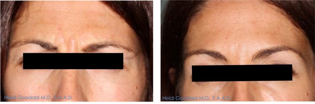 patient before and after of forehead frown lines after botox treatment