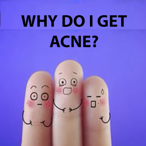 Why Do I Get Acne?