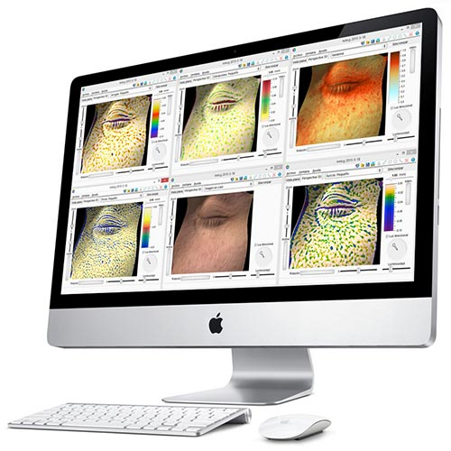 Skin Analysis with  Antera 3D