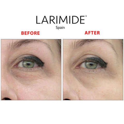Image of Instant Botox Effect | Women - Mediluxe