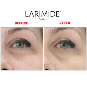 Instant Botox-like Effect | Women - Mediluxe