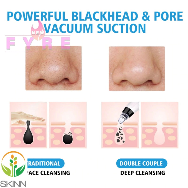 products/blackhead-pore-vacuum_4_733.jpg