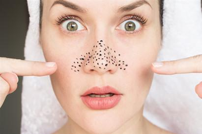 Do you really know about blackheads?
