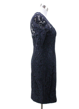 Burberry Navy Lace Dress 1