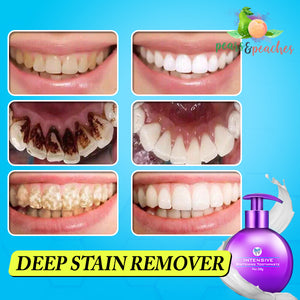 Intensive Whitening Toothpaste