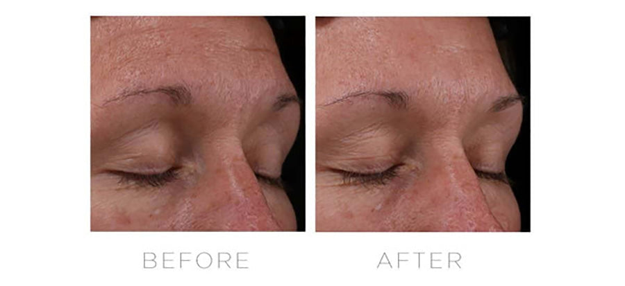 CosMedix Serum 16 Retinol Complex before and after