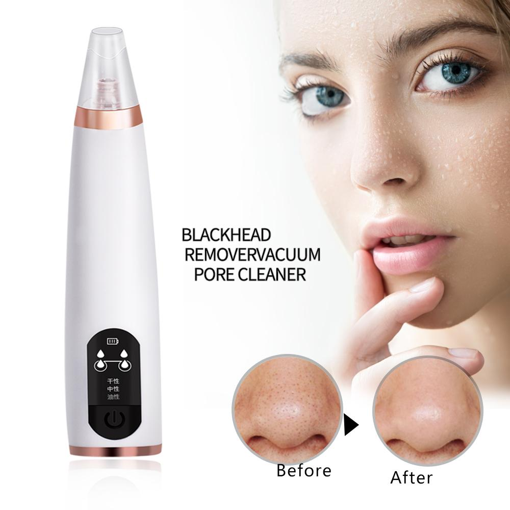 Electronic Nose Black Remover