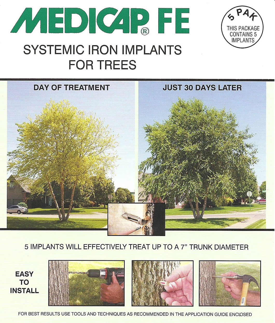 Medicap FE Systemic Iron Implants for Trees