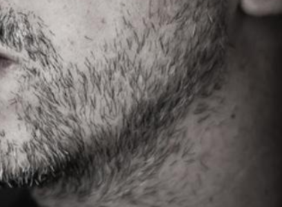 What Causes a Patchy Beard?