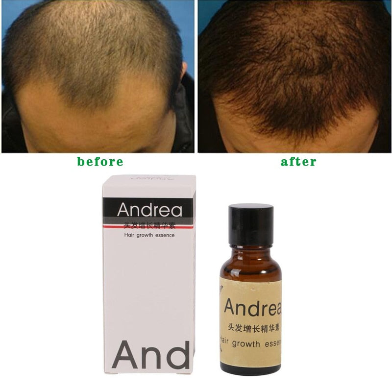 Anti Hair Loss Hair Growth Oil for Men and Women