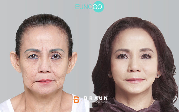 Jessica Iskandar dan Ibunda : Cerita Treatment Anti-Aging Mrs. Owen di Korea