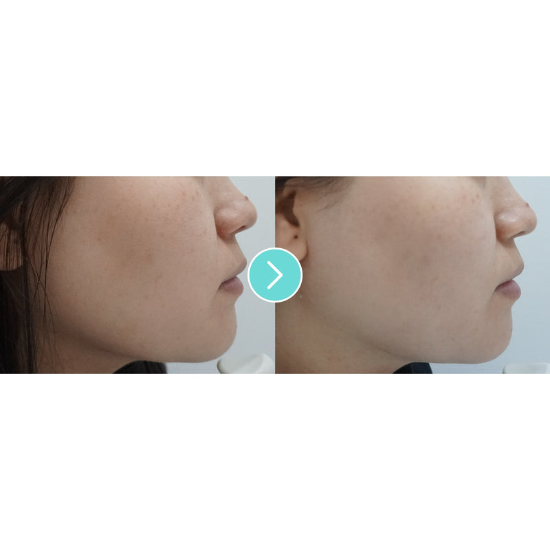 Shurink Laser, Non Invasive Face Lift